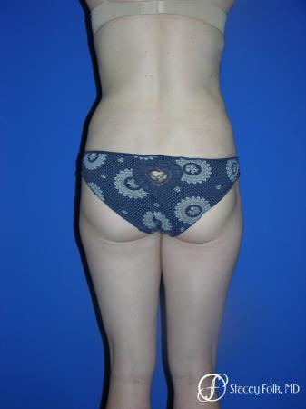 Denver Liposuction 961 -  After Image 2