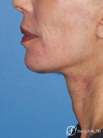 Facelift, Fat Transfer, Laser - After Image