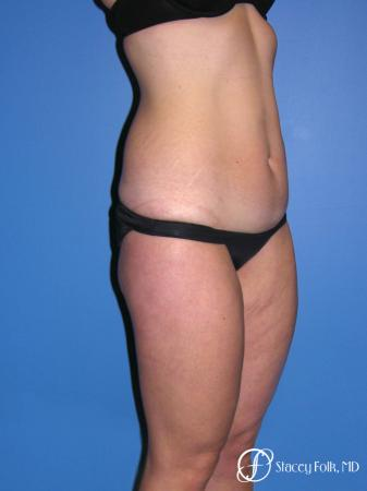 Denver Tummy Tuck Abdominoplasty and liposuction 4880 - Before Image 2
