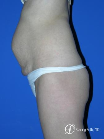 Denver Tummy Tuck 20 - Before and After Image 2