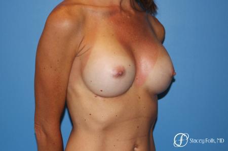 Denver Breast Revision 8504 -  After Image 2