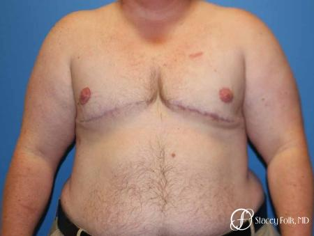 Denver Female to male top surgery 5258 -  After Image 1