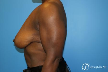 Denver Breast Lift - Mastopexy 7509 - Before and After Image 5