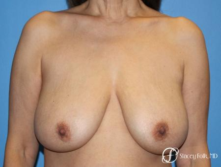 Denver Breast Lift - Mastopexy 7984 - Before Image 1