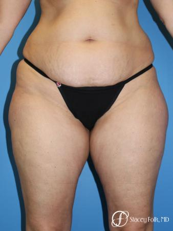 Tummy Tuck - Abdominoplasty - Before Image