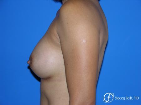 Denver Breast Augmentation 3629 -  After Image 5