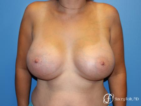 Denver Breast augmentation using textured implants 8271 -  After Image 1