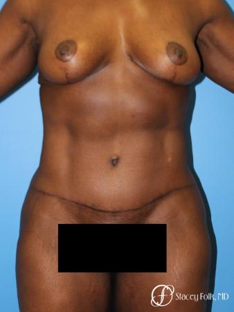 Denver Breast Lift - Mastopexy, and Tummy Tuck - Abdominoplasty 7512 - After Image