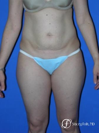 Denver Tummy Tuck 35 - Before Image 1