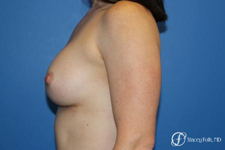 Breast augmentation with Natrelle Inspira breast implants -  After Image 5