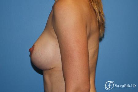 Breast Augmentation and Breast lift (Mastopexy) -  After Image 2