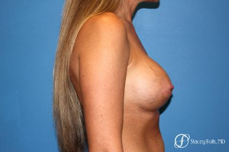 Denver Breast Augmentation 3626 -  After Image 4