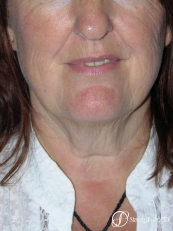 Denver Facial Rejuvenation Face lift, Fat Injections, Laser Resurfacing 7133 - Before and After Image 3