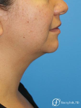 Denver CoolSculpting treatment of the double chin 8275 - After Image