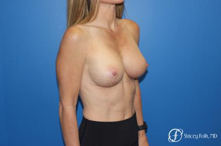 Breast Augmentation With Lift: Patient 1 - After Image 2