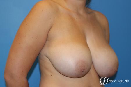 Denver Breast Lift - Mastopexy 10021 - Before Image 4