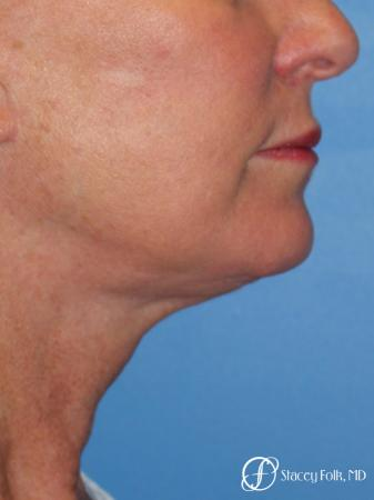 Denver Facial Rejuvenation 7916 -  After Image 2