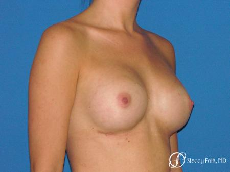 Denver Breast Augmentation 4779 -  After Image 2