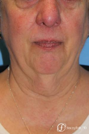 Denver Facial Rejuvenation Face and Neck Lift with Fat Transfer to the Face 9133 - Before and After Image 2