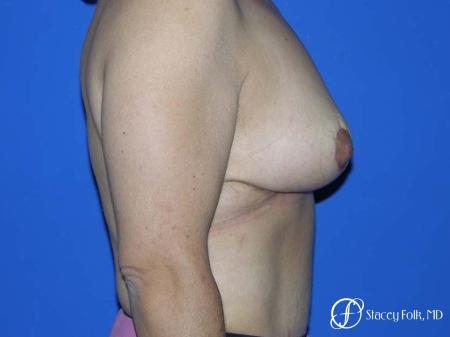 Denver Breast Lift - Mastopexy 7982 -  After Image 3