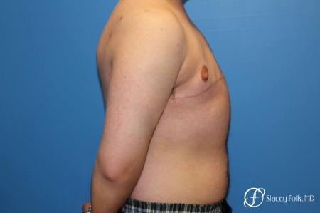 Denver FTM Top Surgery 5089 -  After Image 3
