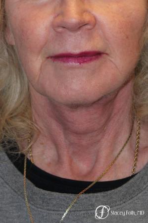 Denver Facial Rejuvenation Face lift, Fat Injections, and Laser Resurfacing 7131 -  After Image 3