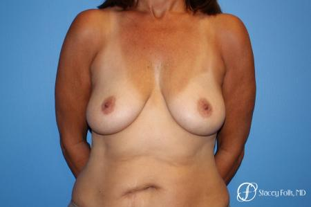 Denver Fat Transfer Breast Lift Mastopexy with Fat Transfer to the Breast 6916 - Before Image