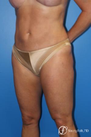 Denver Liposuction 10267 -  After Image 2