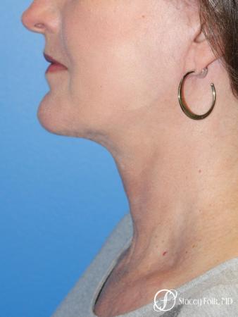 Denver Facial Rejuvenation Facelift, Blepharoplasty, Fat Transfer, Laser Resurfacing 10350 - After Image