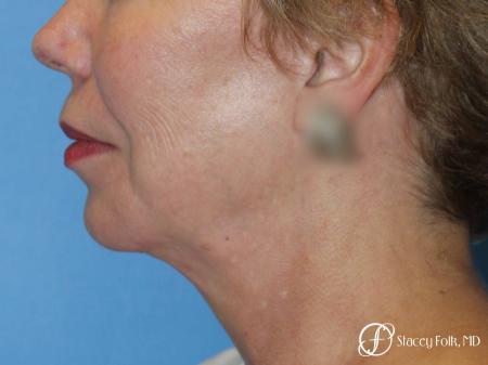 Denver Facial Rejuvenation Facelift, Fat Transfer, and Laser Resurfacing 8513 -  After Image 1