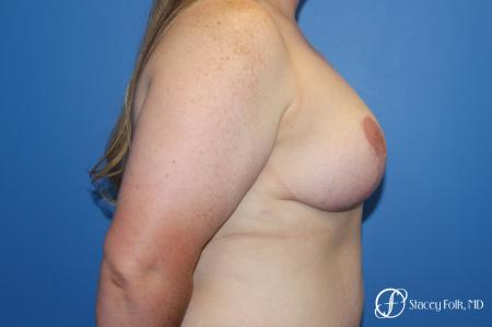 Breast Lift (Mastopexy) -  After Image 3