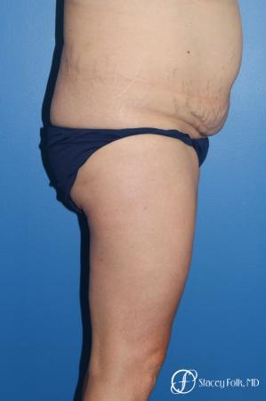 Denver Tummy Tuck (Abdominoplasty) and liposuction 10371 - Before and After Image 3