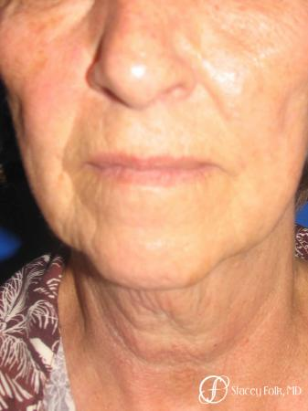 Denver Facial Rejuvenation Face Lift and Fat Injections 7129 - Before and After Image 3