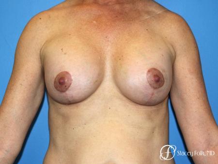 Denver Breast Augmentation Mastopexy 8163 -  After Image 1