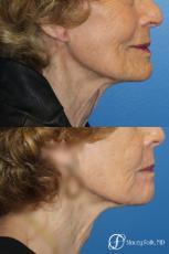 Laser Skin Resurfacing - After Image