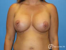 Denver Breast Lift and Augmentation 8629 - After Image