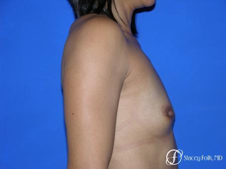 Denver Breast Augmentation 3629 - Before Image 4