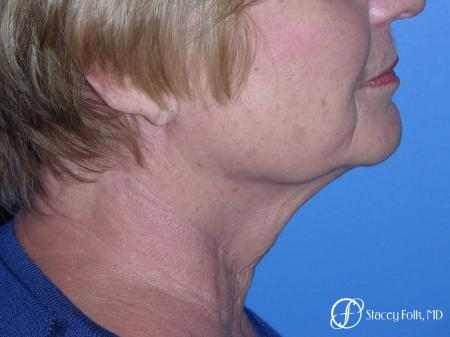 Denver Facial Rejuvenation Face Lift, Fat Injections, and Laser Resurfacing 7120 - Before Image 1