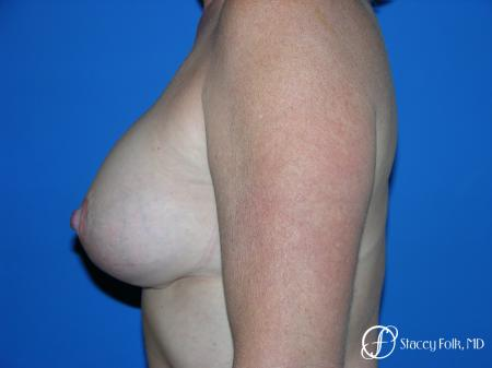 Denver Breast Lift and Augmentation 4557 -  After Image 3