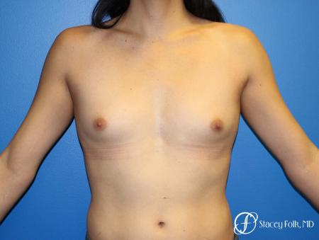MTF (Male To Female Top Surgery) Breast Augmentation - Before Image 1