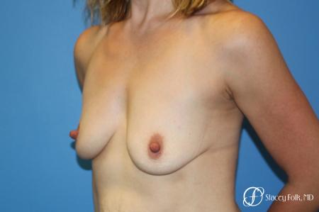 Denver Breast lift and Augmentation 7850 - Before Image 2