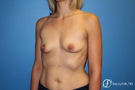 Denver Breast Augmentation 4816 - Before Image 2