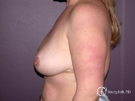 Denver Breast Reduction 45 -  After Image 3