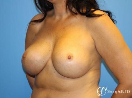 Denver Breast Revision 10094 -  After Image 2