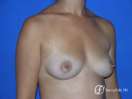 Denver Breast Augmentation 29 - Before and After Image 2