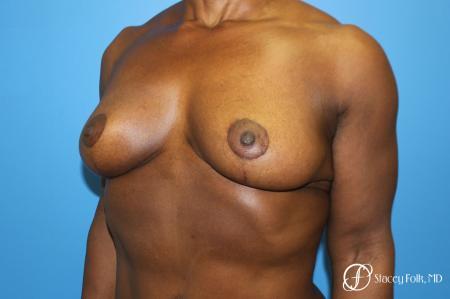 Denver Breast Lift - Mastopexy 7509 -  After Image 4