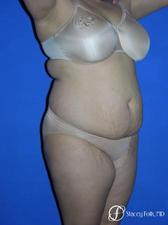 Denver Mommy makeover, breast reduction, abdominoplasty and liposuction 5353 - Before Image 2