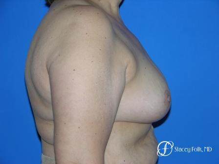 Denver Breast Reduction 55 -  After Image 2