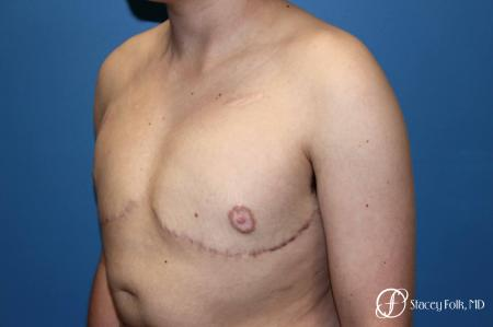 Denver Female to Male Top Surgery 5257 -  After Image 4