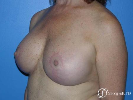 Denver Breast Lift - Mastopexy 7977 -  After Image 2